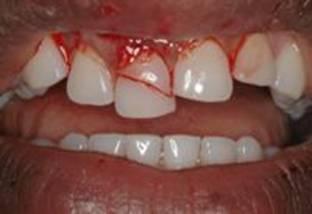 Зуб запломбировали а он болит