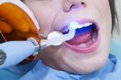 Кому ставили пломбу на передние зубы неужели придется