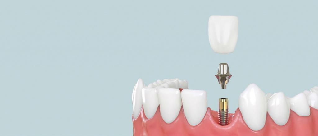 Имплантация 1 зуба