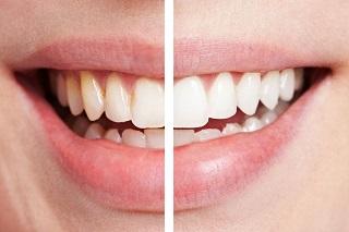Отбеливание зубов без вреда для эмали