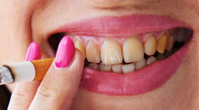 Куріння і зубний наліт